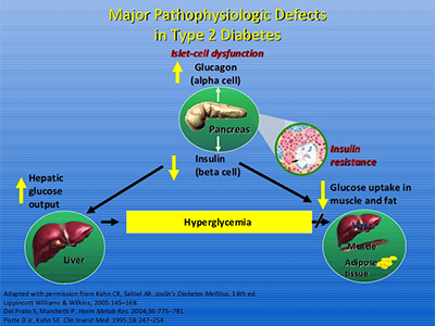 Major Pathophysiologic Defects in Type 2 Diabetes